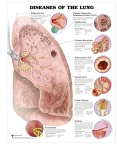Diseases-of-the-Lung-anatomical-chart